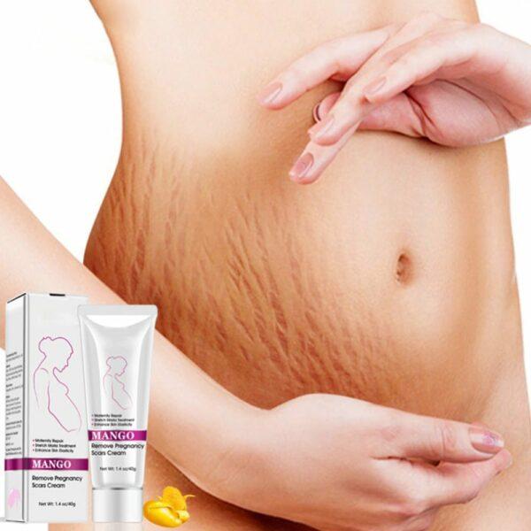 mango pregnancy stretch marks scars cream lotion belly scars